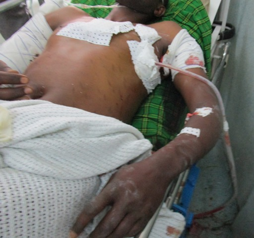 Gunshot Victim in Emergency Dept of HEAL Africa